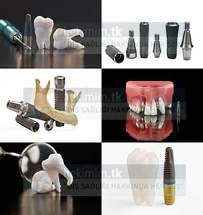 İmplant Diş Örnekleri
