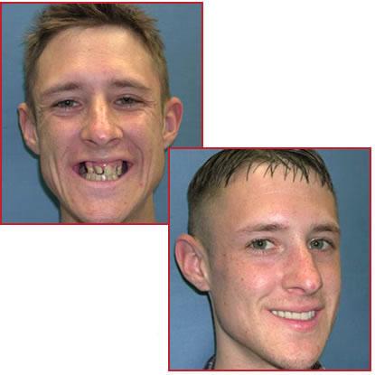 Dental implant ve estetik dişler